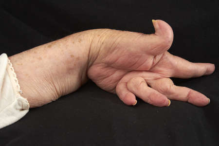 Hand of an elderly woman by arthritis, rheumatism, osteoarthritis shot on black photo