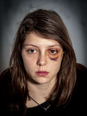 defenceless: black-and-blue eye of a woman victim of domestic violence and abuse