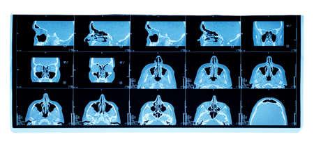 computer tomography of maxillary sinus. nasal septum deviation photo