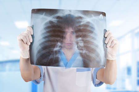 medical doctor looking through x-ray picture of lungs in hospital Stock Photo