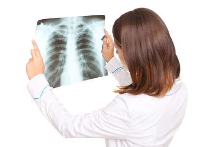 Giovane medico femmina guardando la radiografia dei polmoni isolato su sfondo bianco