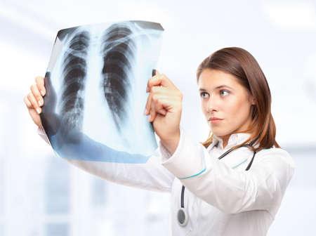 Nữ bác sĩ trẻ nhìn vào bức tranh x-ray của phổi trong bệnh viện