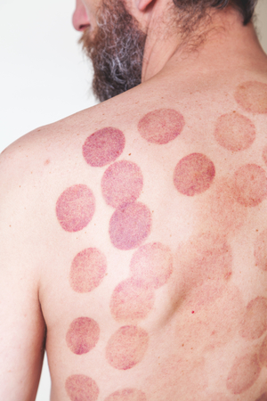alternative practitioner: Traces of medical vacuum massage banks on the back of a slim man with a beard Stock Photo