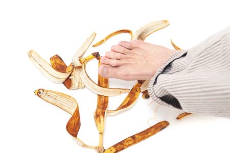 Bare foot with striped trousers hanging over a few banana peel Stock Photo