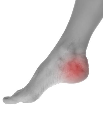 Weibliche Bein Standard-Bild - 29470493