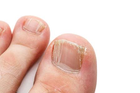 Unghie incrinate delle dita dei piedi isolate su bianco, colpo di primo piano