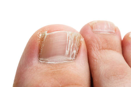 Cracked nails of the toes isolated on white, closeup shot