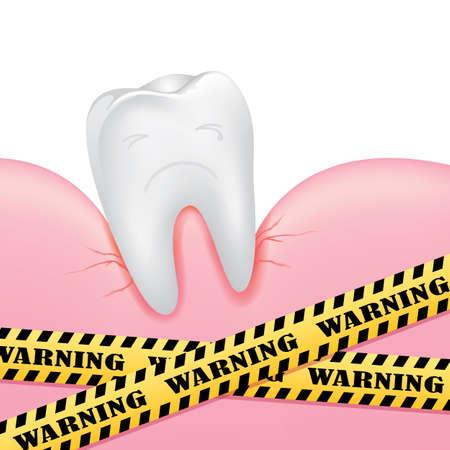 illustation: Tooth and gum problems, vector illustation