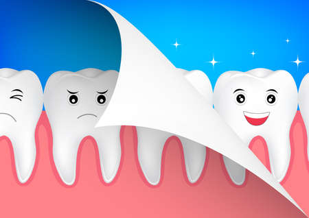 smile close up: beauty and dental health concept. Cute cartoon white teeth, before and after. illustration.
