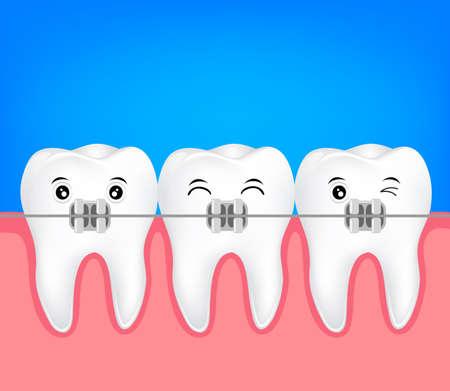 Teeth braces illustration. Dental health care concept.