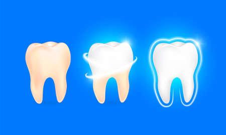 Conjunto de diente limpio y sucio sobre fondo azul, despejando el proceso del diente. Blanqueamiento dental. Concepto de salud dental. Cuidado bucal, restauración de los dientes. Dientes amarillos y blancos