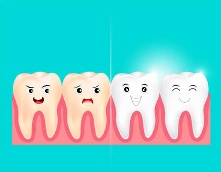 Dental veneers on a human tooth.  Before and After, whitening oral care concept. Deep cleaning, clearing tooth process.  illustration on green background. Иллюстрация