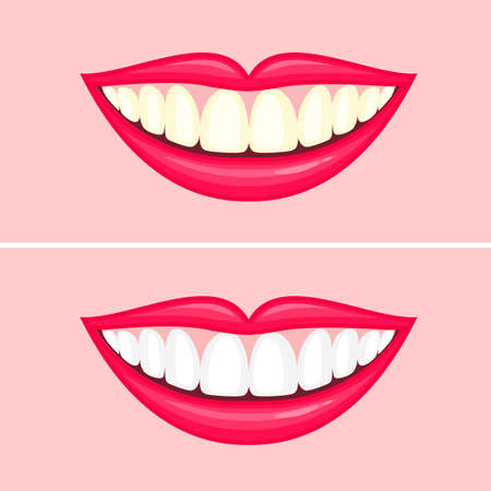 bleaching teeth treatment. Illustration