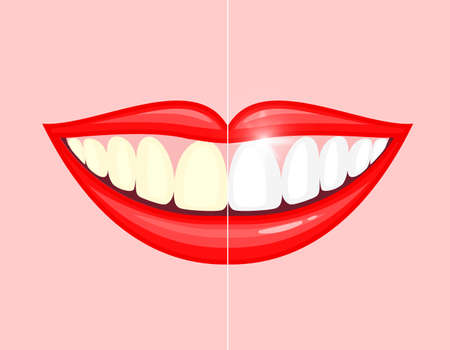 bleaching teeth treatment whiten teeth before and after.