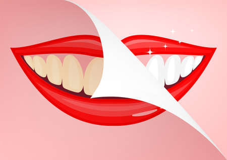 Humen mouth with white teeth, before and after. Beauty and dental health concept. Vector illustration on pink background.