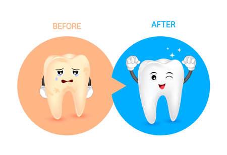 Personnage de dessin animé avant et après. Blanchir les dents jaunes. Concept de soins dentaires, illustration.
