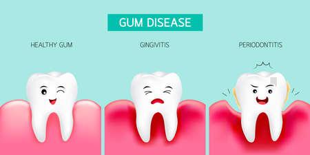 Fase della malattia delle gengive. Dente sano, gengivite e infine parodontite. Disegno cartoon carino, illustrazione isolato su sfondo verde. Concetto di cura dentale.