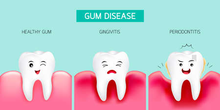 Step of gum disease. Healthy tooth, gingivitis and finally periodontitis. Cute cartoon design, illustration isolated on green background. Dental care concept. Illustration