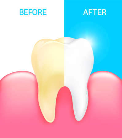 human face: Dental veneer, tooth before and after. dental care concept. Stomatology and healthcare, white tooth illustration.