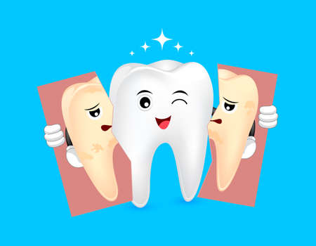 Cute cartoon whitening tooth holding tear of unhealthy tooth. Dental care concept, before and after. Illustration isolated on blue background.
