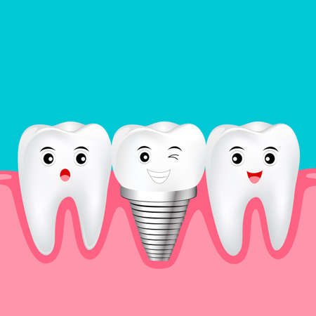 Two healthy teeth and implant tooth between. Funny cartoon character design. Human tooth implant concept, Illustration.