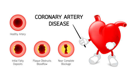 Cute heart character with Coronary Artery Disease infographic. Heart awareness concept. Atherosclerosis stages.