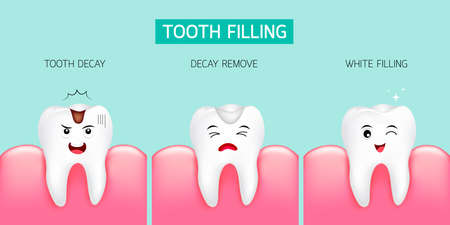 Paso del llenado de dientes Caries dental, eliminación de caries y relleno blanco. Diseño lindo de la historieta, ilustración aislada en fondo verde. Concepto de cuidado dental.