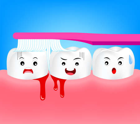 Cute cartoon tooth character brushing with bleeding on gum and tooth concept gingivitis or scurvy. Illustration isolated on blue background.