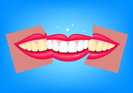 Whitening teeth, before and after. Human mouth, Dental care concept. Illustration isolated on blue background.
