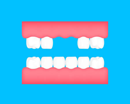 Dental cartoon of missing tooth. Dental care concept. Illustration isolated on blue background.