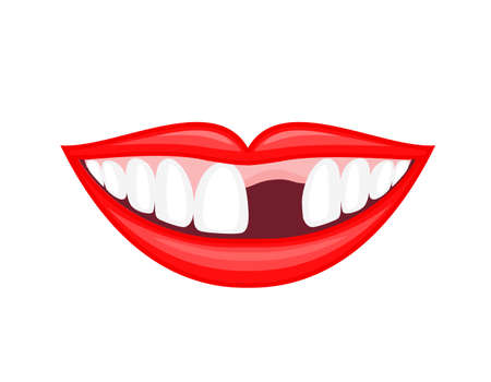 Human mouth with missing tooth. Dental care concept. Illustration isolated on white background.