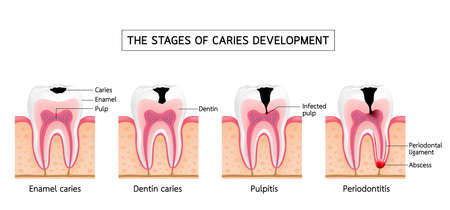 Stages of caries development. Enamell caries, Dentin caries, Pulpitis and Periodontitis. Dental care info-graphic, illustration on white background.