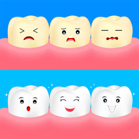 Cute cartoon white and yellow teeth. Before and After, whitening oral care concept.  Dental veneers on human tooth. Deep cleaning, clearing tooth process. Illustration on blue background.
