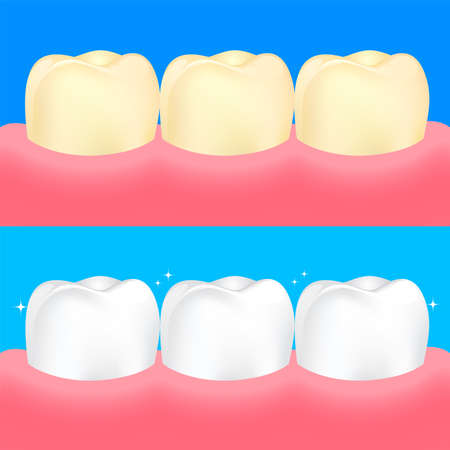Dental veneers on human tooth.  Before and After, whitening oral care concept. Deep cleaning, clearing tooth process. Illustration on blue background. Illustration