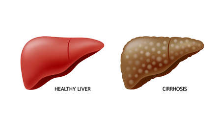 Comparison of healthy liver and cirrhosis. Liver Disease. Illustration info-graphic, isolated on white background.