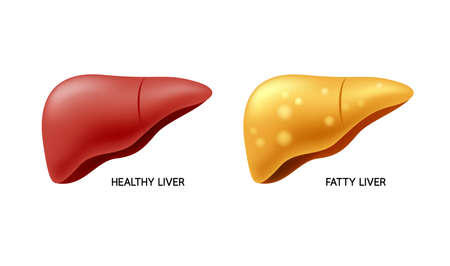 Comparison of healthy liver and fatty live. Liver Disease. Illustration info-graphic, isolated on white background. Illustration