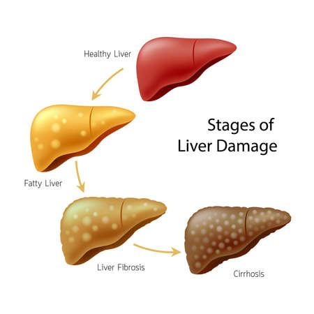 Etapas del daño hepático. Enfermedad del higado. Hígado sano, hígado graso, fibrosis hepática y cirrosis. Ilustración información gráfica, aislada sobre fondo blanco. Ilustración de vector