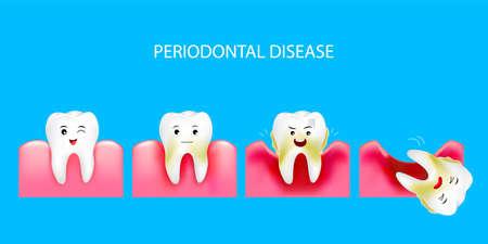 Fase della malattia parodontale. Denti sani e gengiviti. Concetto di cure odontoiatriche. Illustrazione isolato su sfondo blu. Vettoriali
