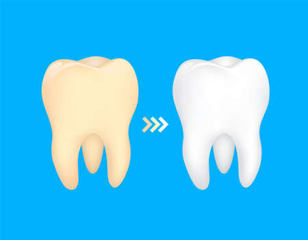 Tooth before and after. Yellow becomes white, Dental care concept,  illustration isolated on blue background. Illustration