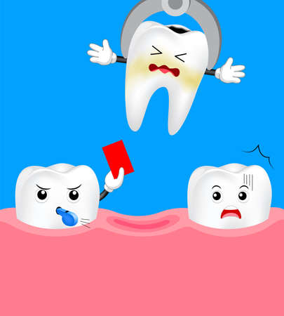 Cute cartoon tooth referee giving red card. Tooth dental extraction, removal of tooth. Dental care concept. Illustration isolated on blue background. Illustration