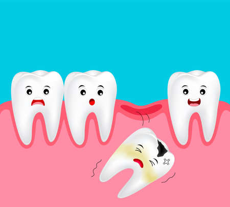 Schattige cartoon ontbrekende tand. Tand stripfiguur. Tandheelkundige zorgconcept. Illustratie geïsoleerd op blauwe achtergrond.