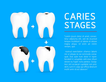 Tooth on different stages of dental caries development. Enamel caries, Dentin caries, Pulpitis and Periodontitis. Design for banner and poster. Illustration on blue background. Illustration