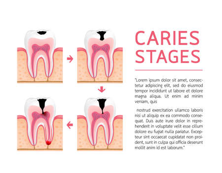 Tooth on different stages of dental caries development. Enamel caries, Dentin caries, Pulpitis and Periodontitis. Design for banner and poster. Illustration on white background. Illustration