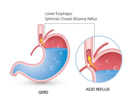 Enfermedad por reflujo gastroesofágico (ERGE). Infografía de reflujo ácido, acidez estomacal y gerd con ilustración médica del estómago, síntomas, causas y prevención Ilustración de vector