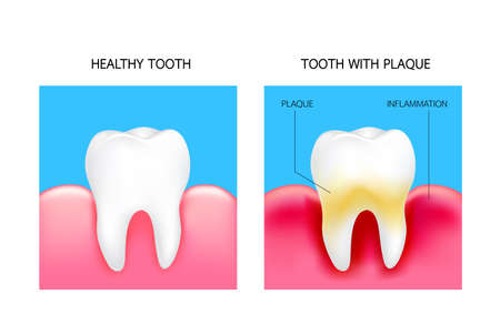 Dental plaque with inflammation and healthy tooth. Illustration isolated on blue background. Dental care concept. Illustration