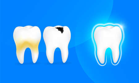 Healthy tooth, decay tooth and tooth with plaque. great for your design. Dental care concept. Illustration isolated on blue background.
