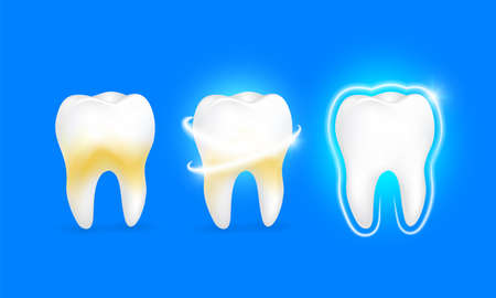Set of  clean and dirty tooth on blue background, clearing tooth process. Teeth Whitening. Dental health Concept. Oral Care, teeth restoration. Yellow and white teeth. Illustration