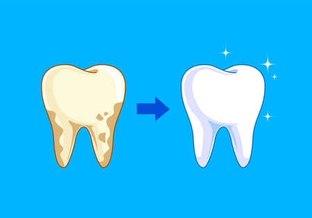 Tooth before and after. Yellow becomes white, Dental care concept, illustration isolated on blue background.