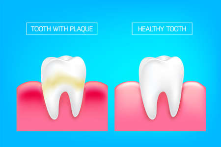 Tooth with plaque and healthy tooth comparision.  Teeth Whitening. Dental care Concept. Oral Care, teeth restoration. Yellow and white teeth. Illustration