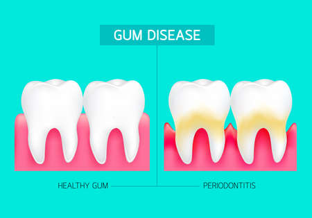Periodontitis and inflammation of the gums. Healthy gum and periodontitis comparison. Dental care concept. Illustration on green background.